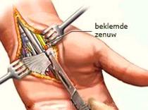 tintelende handen en carpaal tuneelsyndroom
